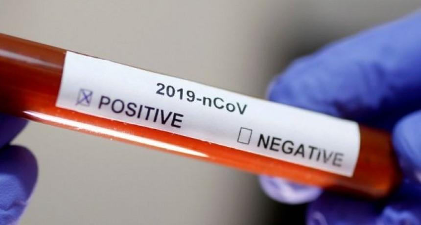Coronavirus; Se confirmaron 79 nuevos casos y 4 fallecidos este martes