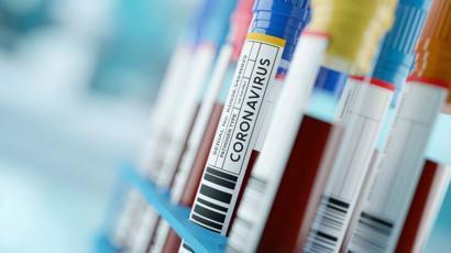 Suman 260 las víctimas fatales y 4.887 los infectados por coronavirus en Argentina