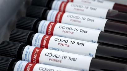 La cifra de víctimas fatales por coronavirus en el país se elevó a 366 tras confirmarse otras tres muertes