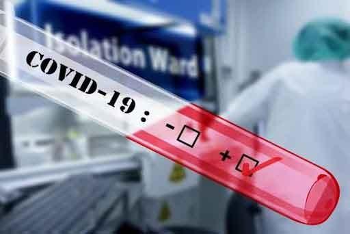COVID 19; Registro de casos confirmados en la zona en las últimas 24 horas