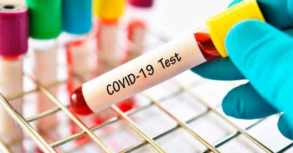 COVID 19; Preocupa el aumento de casos en la zona